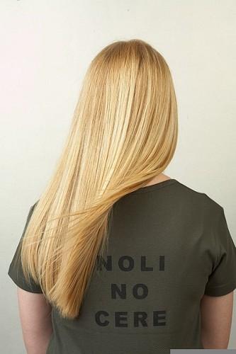 Пересадка волос в чебоксарах у женщин