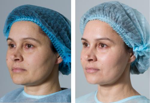 Лечение гиперпигментации, избавиться от веснушек, эстетическая косметология, косметолог иркутск, профилактика пигментации, сатэль иркутск