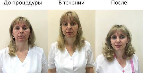 натуральные пилинги, косметология в Иркутске, лечение акне, антивозрастные пилинги