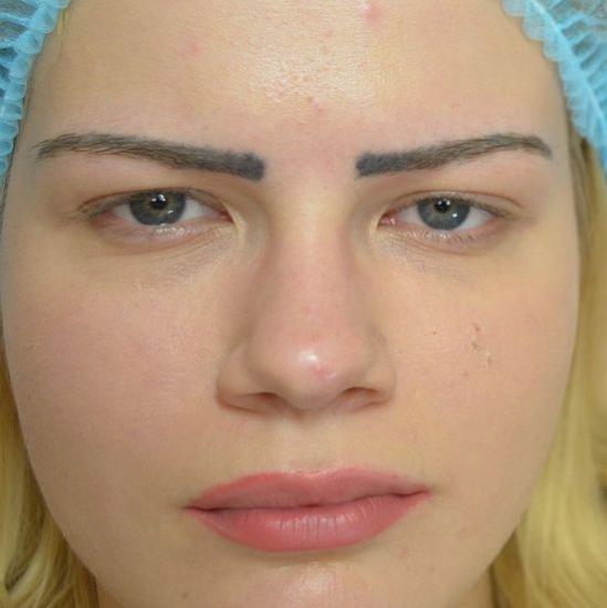 Перманентный макияж неудачный
