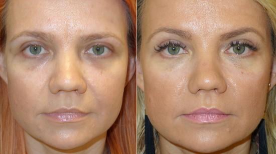 микропигментирование, перманентный макияж, кафедра макияжа галатея, наталья вейнберг, иркутск, иркфэшн, перманетный макияж сосков, перманентный макияж при облысении, алопеция, перманентный макияж глаз